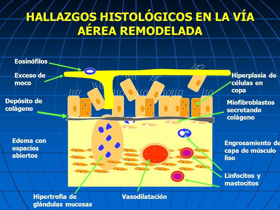 HALLAZGOS HISTOLÓGICOS EN LA VÍA AÉREA REMODELADA Eosinófilos Depósito de colágeno Edema con espacios abiertos Hipertrofia de glándulas mucosas Vasodi