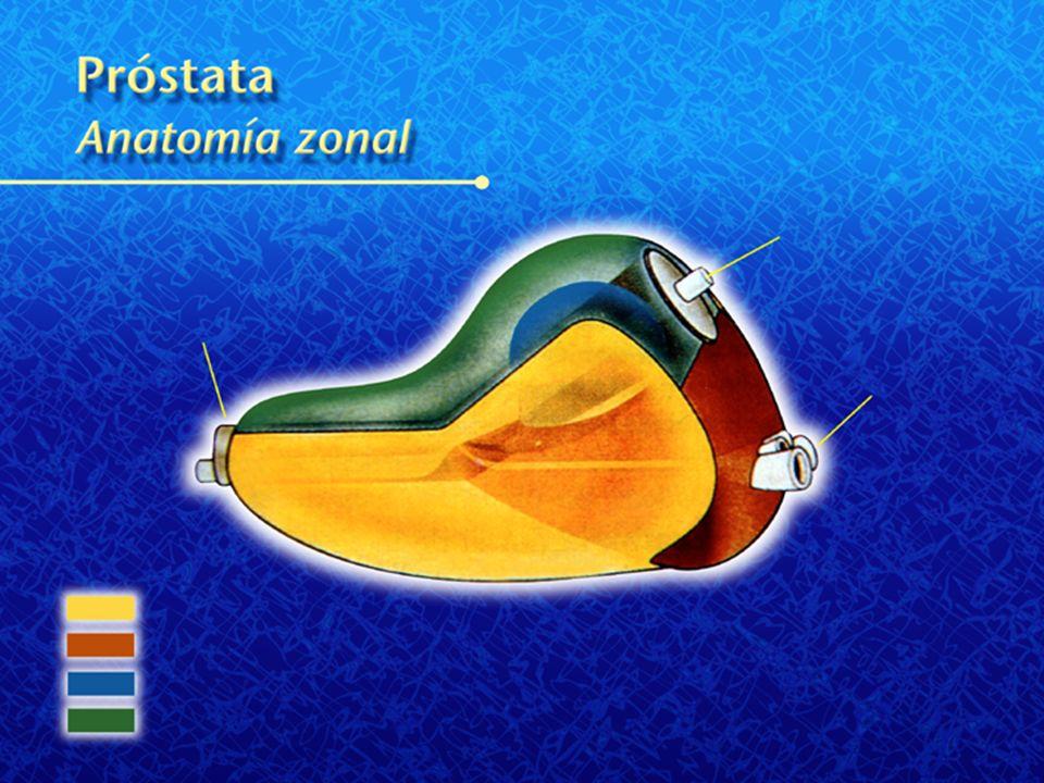Anatomía de la prostata Uretra prostática Prostata Ductos eyaculadores abiertos Esfínteruretral externo
