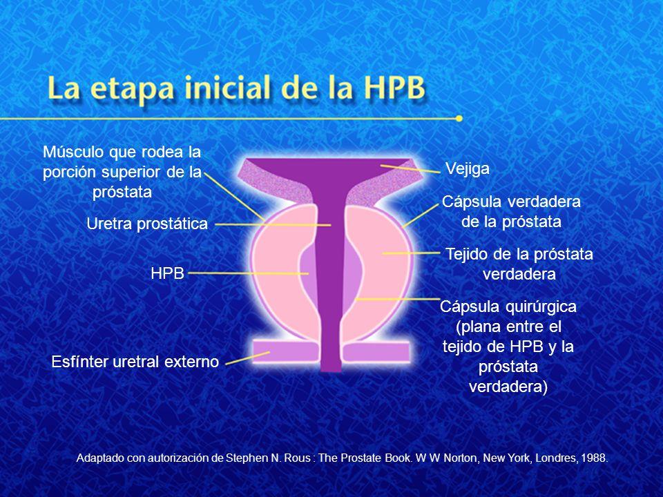 Músculo que rodea la porción superior de la próstata Uretra prostática HPB Esfínter uretral externo Vejiga Cápsula verdadera de la próstata Tejido de