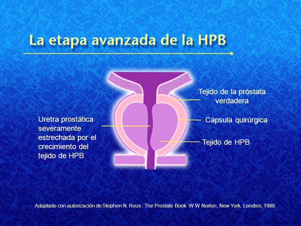 Uretra prostática severamente estrechada por el crecimiento del tejido de HPB Tejido de la próstata verdadera Cápsula quirúrgica Tejido de HPB Adaptad
