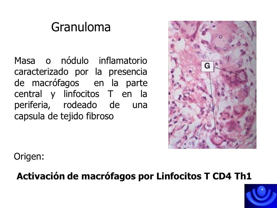 Granuloma Masa o nódulo inflamatorio caracterizado por la presencia de macrófagos en la parte central y linfocitos T en la periferia, rodeado de una c