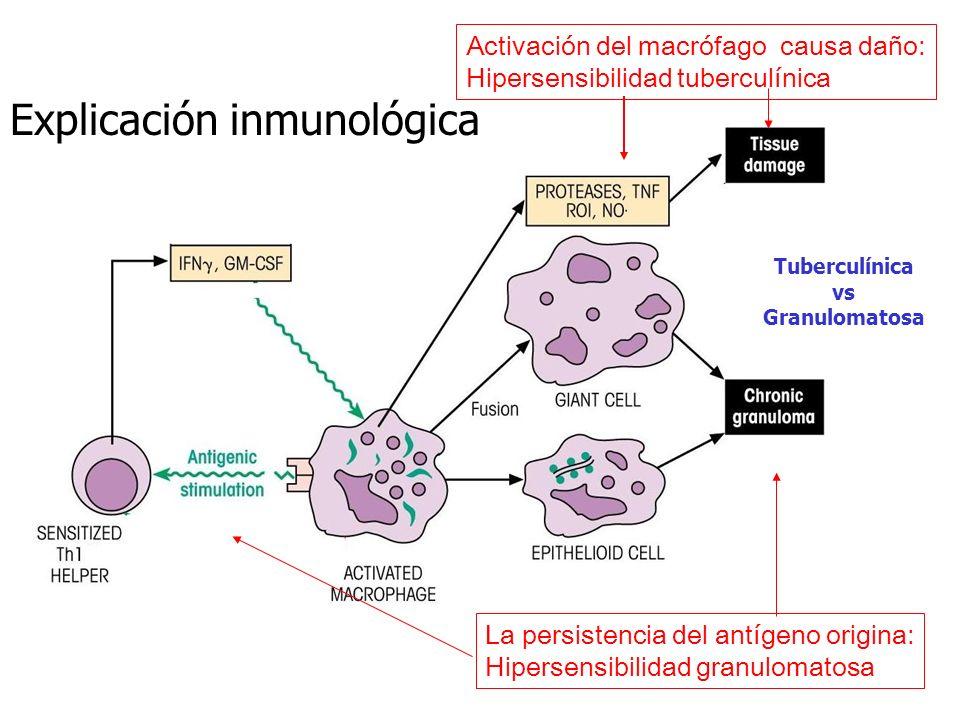 Activación del macrófago causa daño: Hipersensibilidad tuberculínica La persistencia del antígeno origina: Hipersensibilidad granulomatosa Tuberculíni