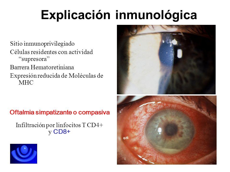 Explicación inmunológica Sitio inmunoprivilegiado Células residentes con actividad supresora Barrera Hematoretiniana Expresión reducida de Moléculas d