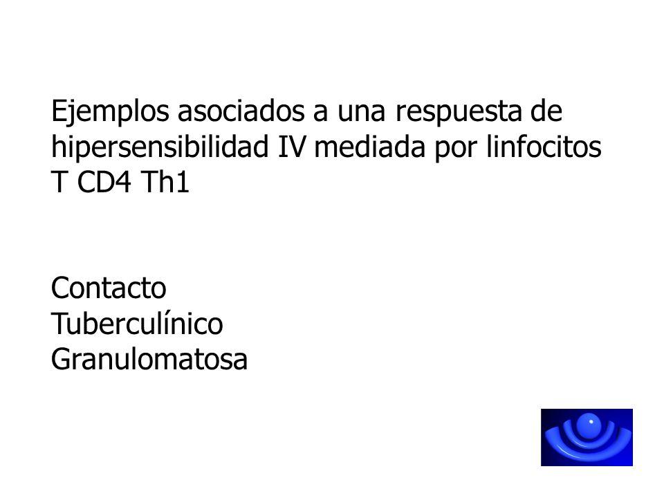 Ejemplos asociados a una respuesta de hipersensibilidad IV mediada por linfocitos T CD4 Th1 Contacto Tuberculínico Granulomatosa