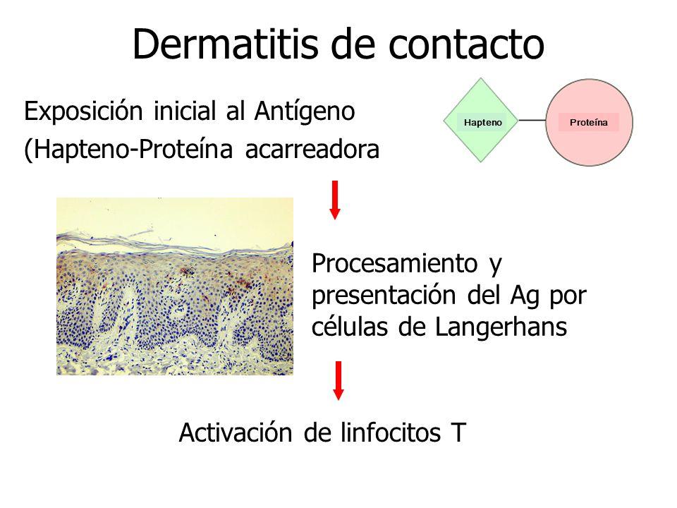 Dermatitis de contacto Activación de linfocitos T HaptenoProteína Procesamiento y presentación del Ag por células de Langerhans Exposición inicial al