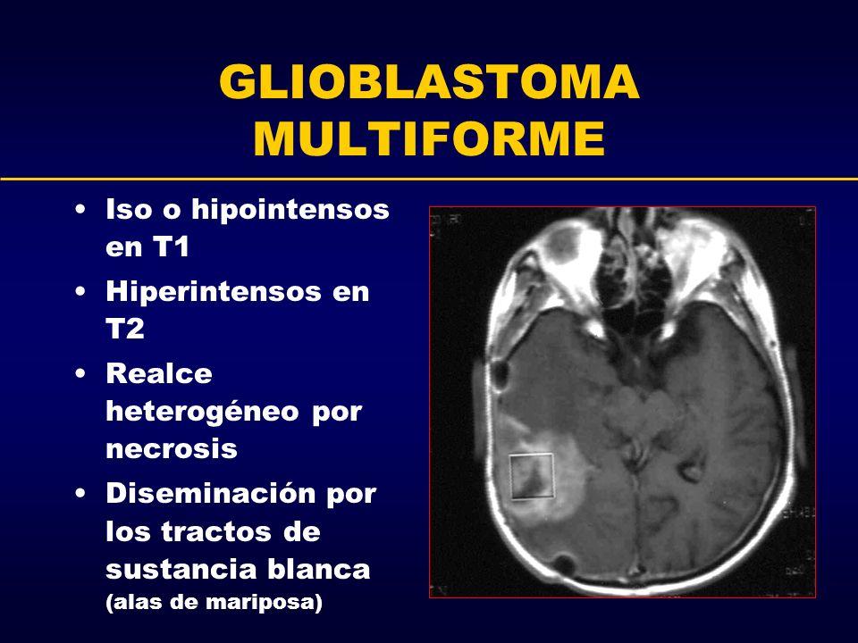 GLIOBLASTOMA MULTIFORME Iso o hipointensos en T1 Hiperintensos en T2 Realce heterogéneo por necrosis Diseminación por los tractos de sustancia blanca