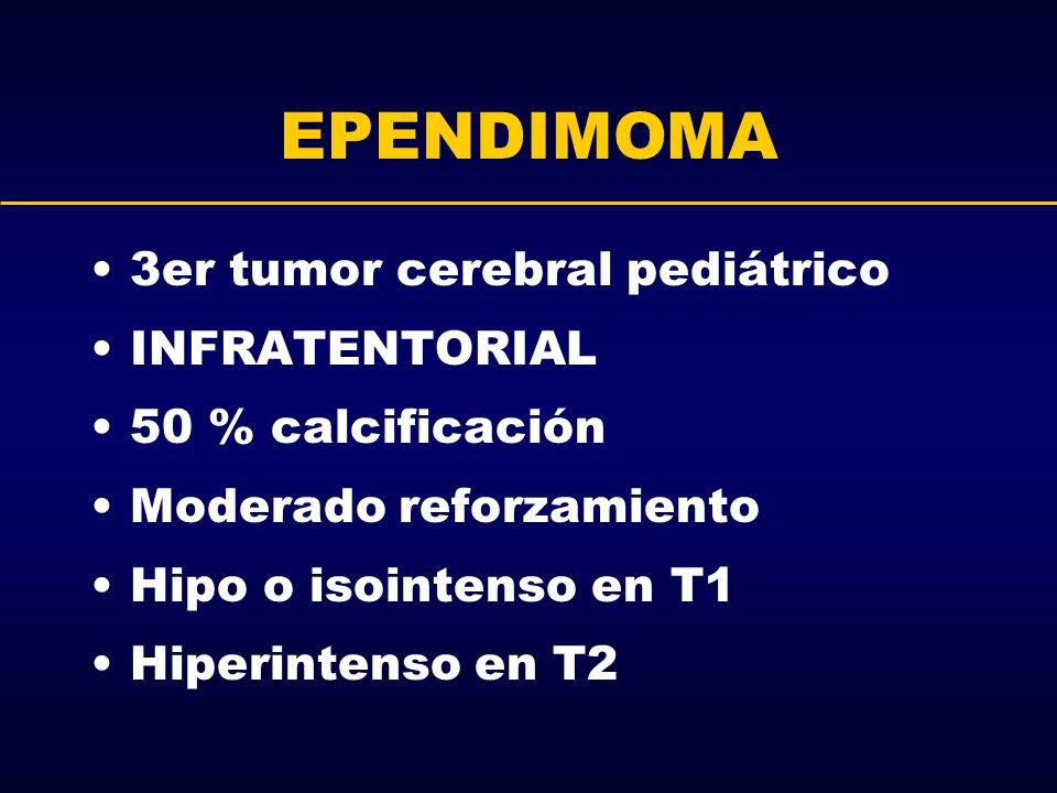 EPENDIMOMA 3er tumor cerebral pediátrico INFRATENTORIAL 50 % calcificación Moderado reforzamiento Hipo o isointenso en T1 Hiperintenso en T2