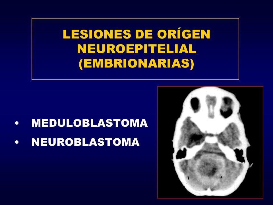 LESIONES DE ORÍGEN NEUROEPITELIAL (EMBRIONARIAS) MEDULOBLASTOMA NEUROBLASTOMA