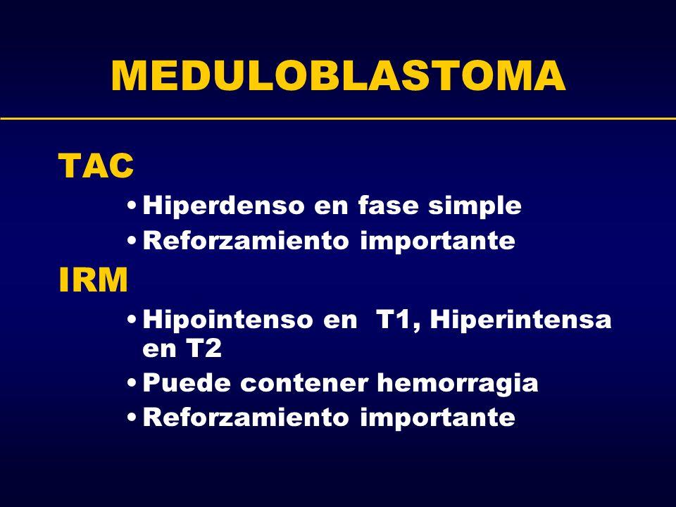 MEDULOBLASTOMA TAC Hiperdenso en fase simple Reforzamiento importante IRM Hipointenso en T1, Hiperintensa en T2 Puede contener hemorragia Reforzamient