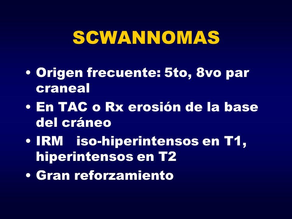 SCWANNOMAS Origen frecuente: 5to, 8vo par craneal En TAC o Rx erosión de la base del cráneo IRM iso-hiperintensos en T1, hiperintensos en T2 Gran refo