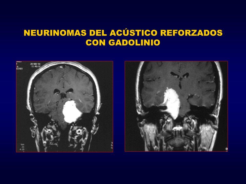 NEURINOMAS DEL ACÚSTICO REFORZADOS CON GADOLINIO