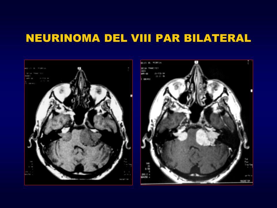 NEURINOMA DEL VIII PAR BILATERAL