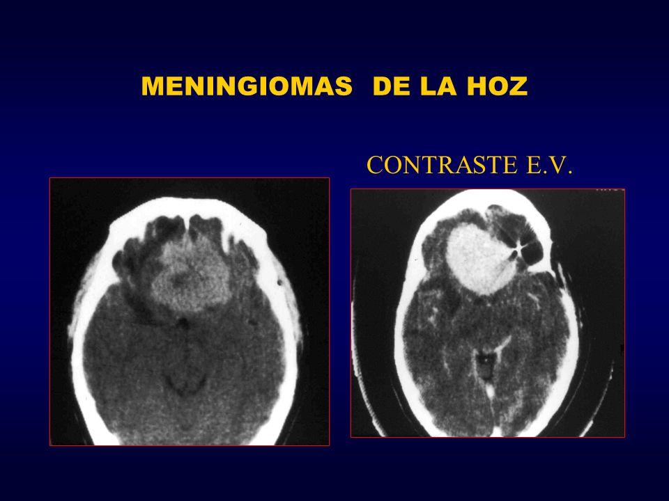 MENINGIOMAS DE LA HOZ CONTRASTE E.V.