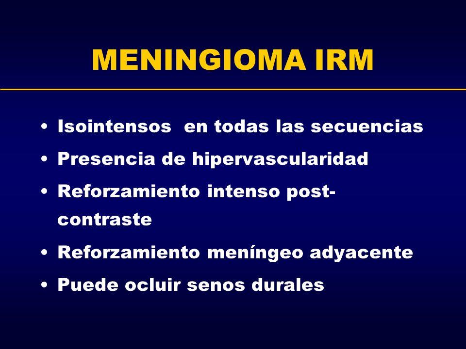 MENINGIOMA IRM Isointensos en todas las secuencias Presencia de hipervascularidad Reforzamiento intenso post- contraste Reforzamiento meníngeo adyacen