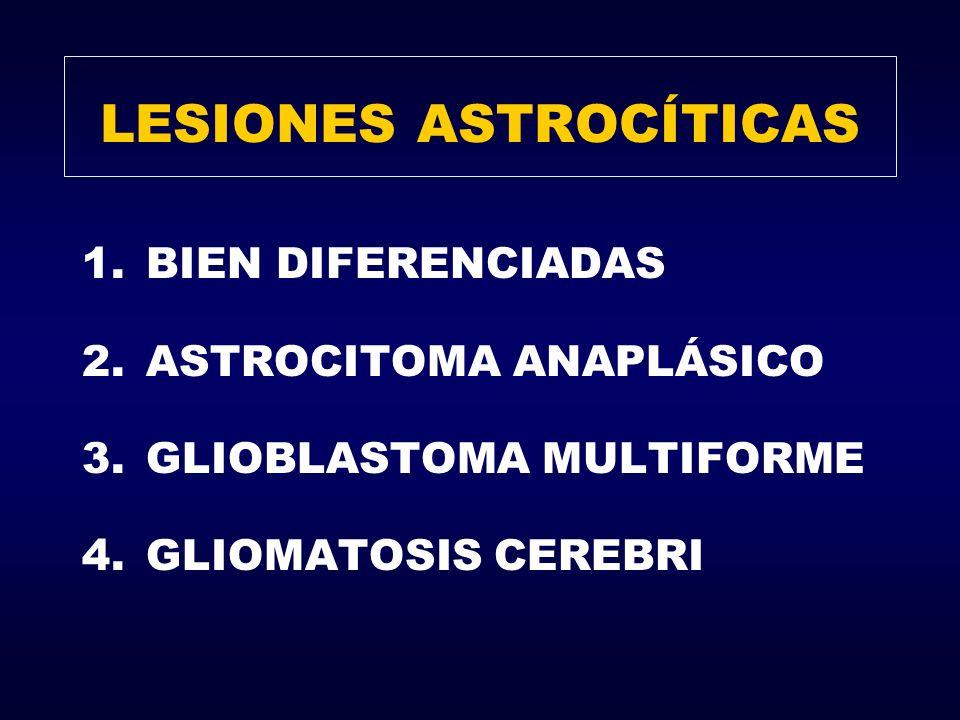 LESIONES ASTROCÍTICAS 1.BIEN DIFERENCIADAS 2.ASTROCITOMA ANAPLÁSICO 3.GLIOBLASTOMA MULTIFORME 4.GLIOMATOSIS CEREBRI
