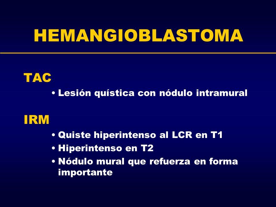 HEMANGIOBLASTOMA TAC Lesión quística con nódulo intramural IRM Quiste hiperintenso al LCR en T1 Hiperintenso en T2 Nódulo mural que refuerza en forma