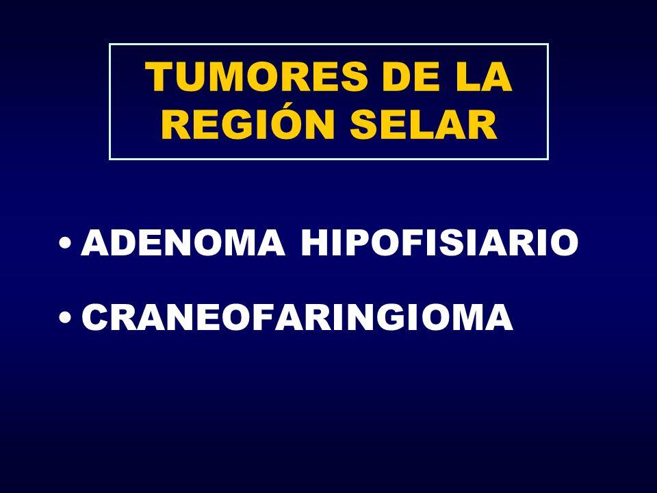 TUMORES DE LA REGIÓN SELAR ADENOMA HIPOFISIARIO CRANEOFARINGIOMA