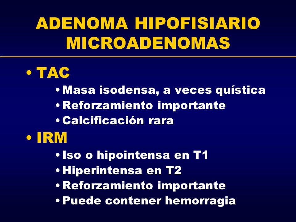 ADENOMA HIPOFISIARIO MICROADENOMAS TAC Masa isodensa, a veces quística Reforzamiento importante Calcificación rara IRM Iso o hipointensa en T1 Hiperin