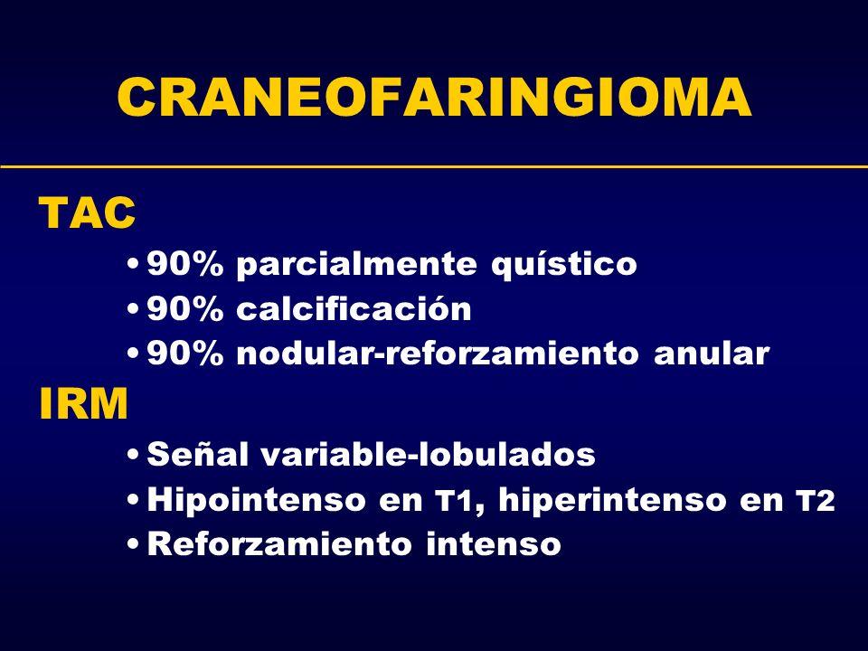 CRANEOFARINGIOMA TAC 90% parcialmente quístico 90% calcificación 90% nodular-reforzamiento anular IRM Señal variable-lobulados Hipointenso en T1, hipe