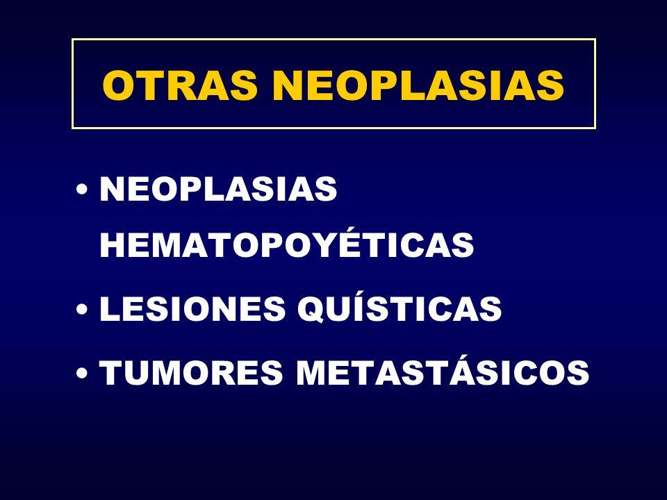 OTRAS NEOPLASIAS NEOPLASIAS HEMATOPOYÉTICAS LESIONES QUÍSTICAS TUMORES METASTÁSICOS