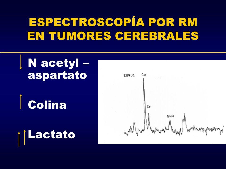 ESPECTROSCOPÍA POR RM EN TUMORES CEREBRALES N acetyl – aspartato Colina Lactato
