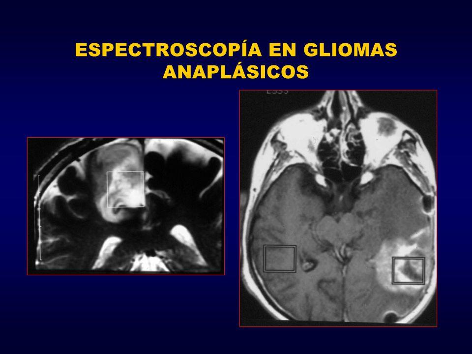 ESPECTROSCOPÍA EN GLIOMAS ANAPLÁSICOS