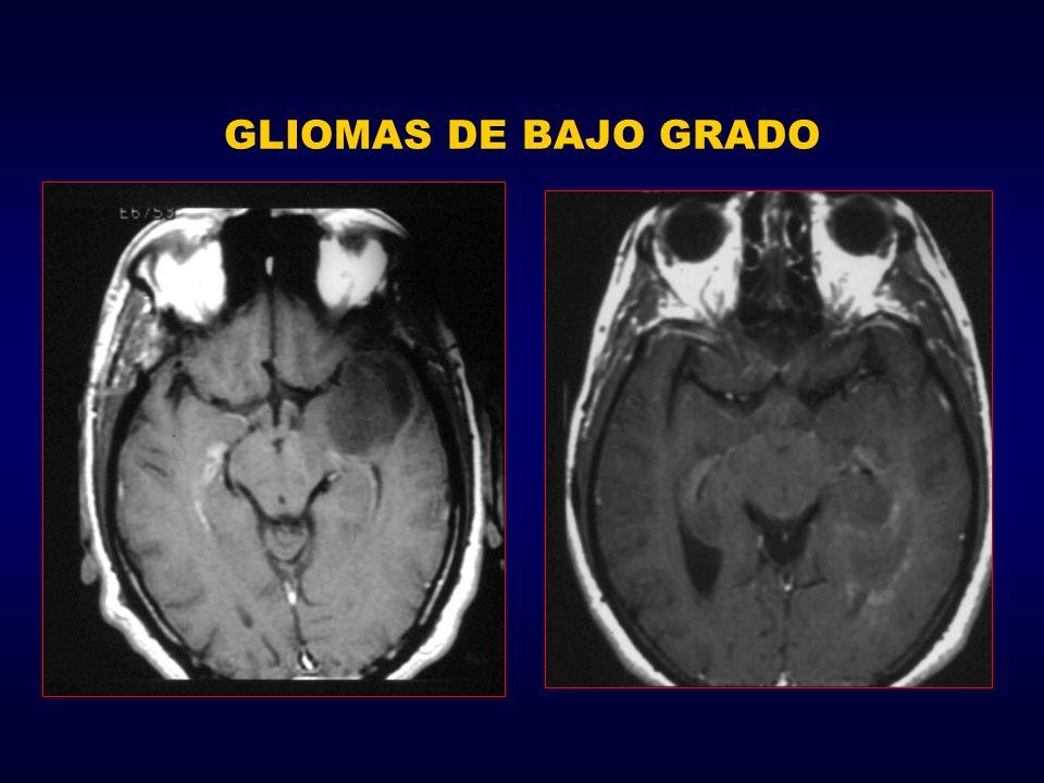 GLIOMAS DE BAJO GRADO