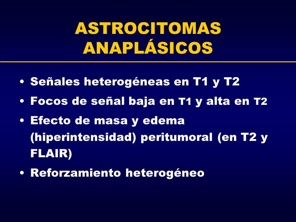 ASTROCITOMAS ANAPLÁSICOS Señales heterogéneas en T1 y T2 Focos de señal baja en T1 y alta en T2 Efecto de masa y edema (hiperintensidad) peritumoral (