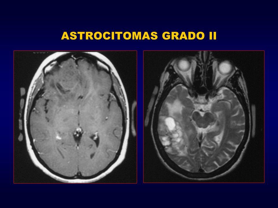 ASTROCITOMAS GRADO II