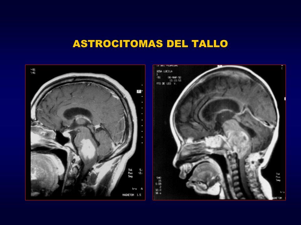 ASTROCITOMAS DEL TALLO