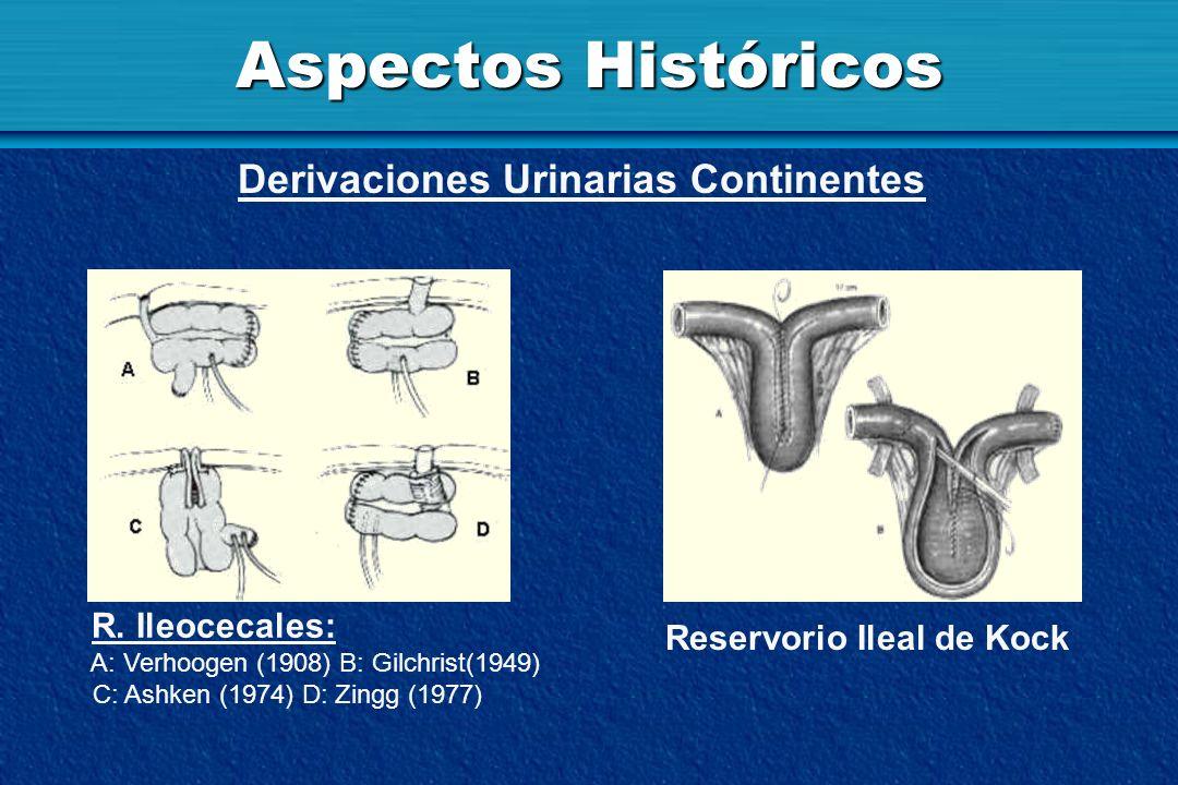 Aspectos Históricos Derivaciones Urinarias Continentes R. Ileocecales: A: Verhoogen (1908) B: Gilchrist(1949) C: Ashken (1974) D: Zingg (1977) Reservo