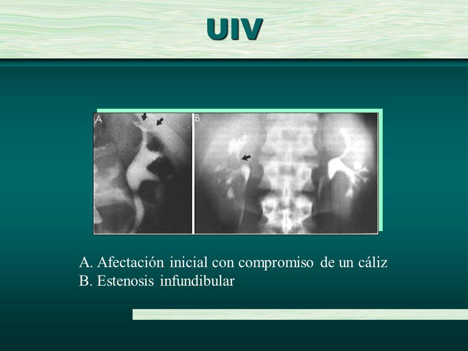 UIV A. Afectación inicial con compromiso de un cáliz B. Estenosis infundibular