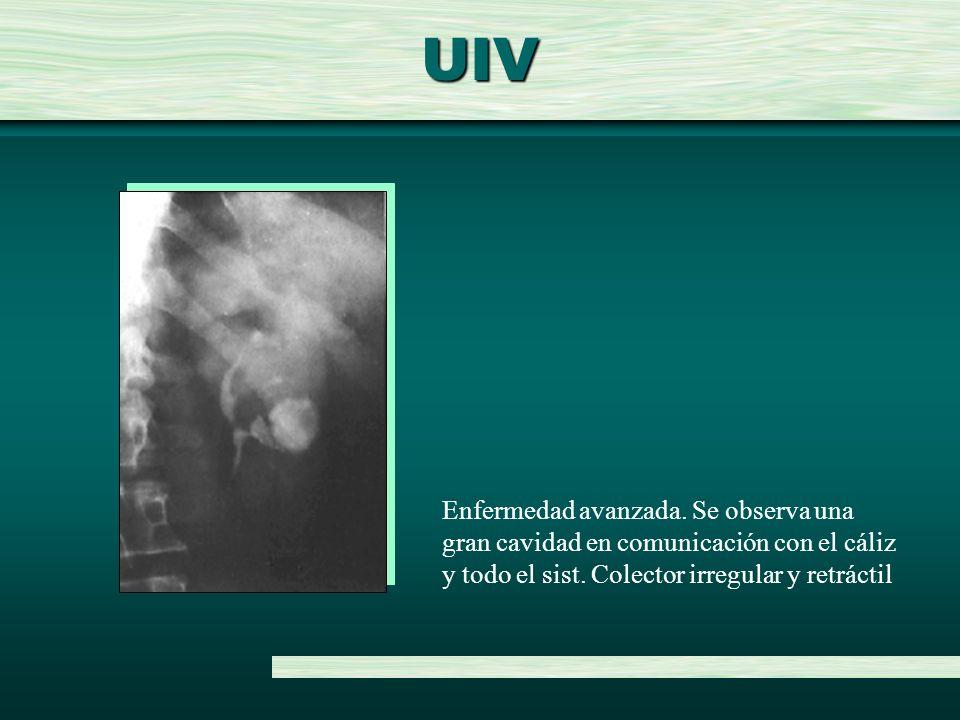 UIV Enfermedad avanzada. Se observa una gran cavidad en comunicación con el cáliz y todo el sist. Colector irregular y retráctil