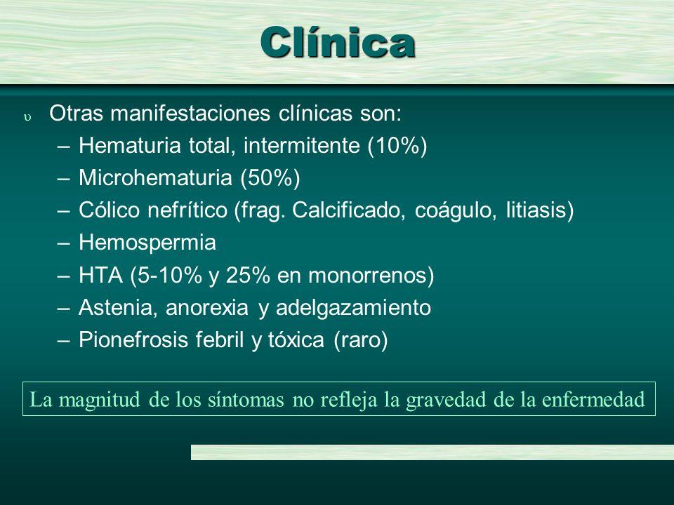 Clínica u Otras manifestaciones clínicas son: –Hematuria total, intermitente (10%) –Microhematuria (50%) –Cólico nefrítico (frag. Calcificado, coágulo