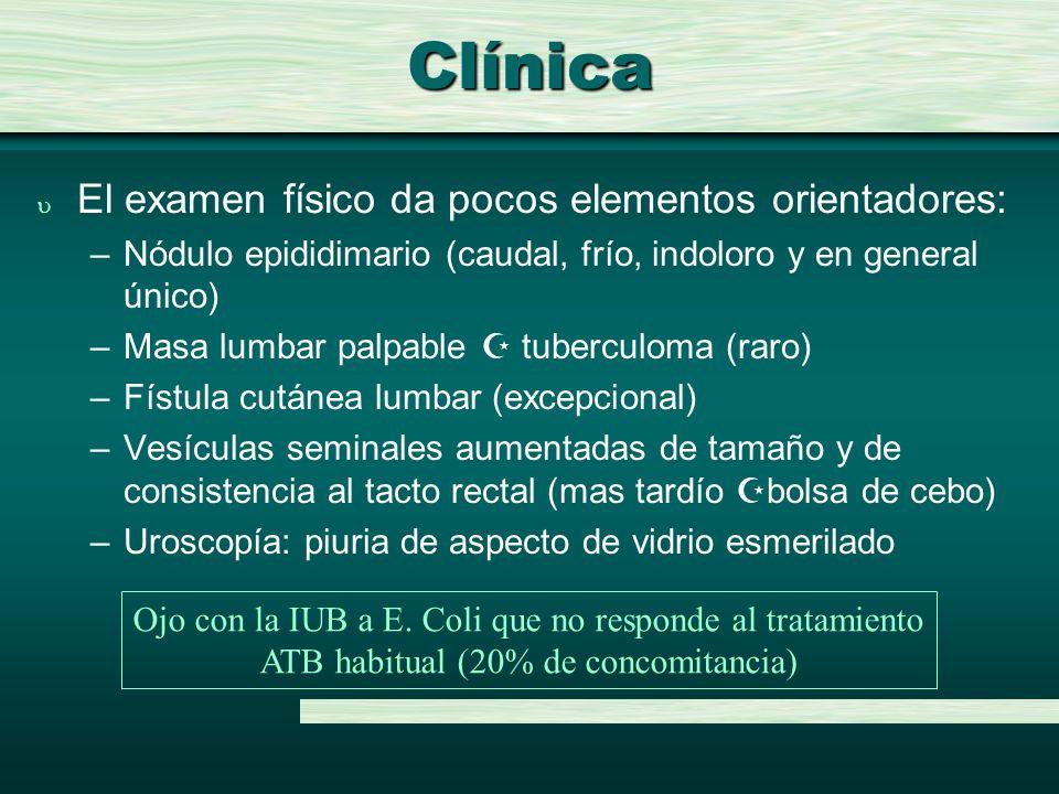 Clínica u El examen físico da pocos elementos orientadores: –Nódulo epididimario (caudal, frío, indoloro y en general único) –Masa lumbar palpable tub
