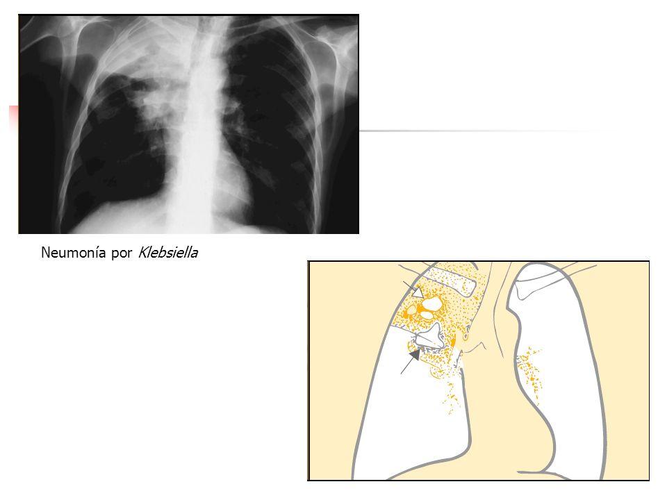 NEUMONIA BACTERIANA La neumonía causada por S. pneumoniae inicia como una inflamación aguda e hiperemia de la mucosa respiratoria inferior, exudado de
