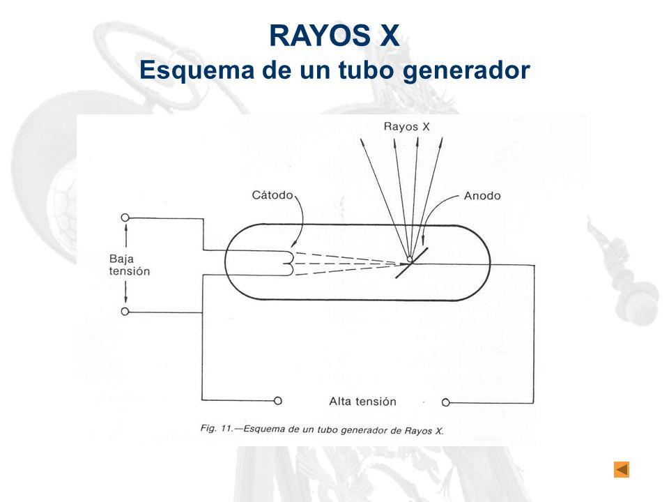 RAYOS X Esquema de un tubo generador