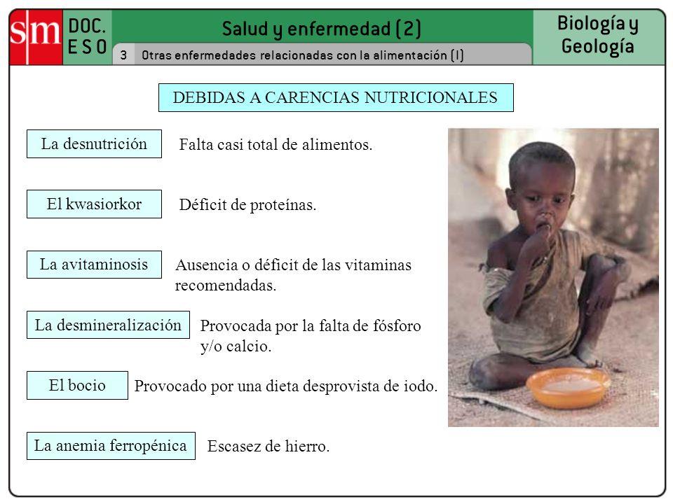 Salud y enfermedad (2) DOC. E S O Biología y Geología 3Otras enfermedades relacionadas con la alimentación (I) Falta casi total de alimentos. DEBIDAS