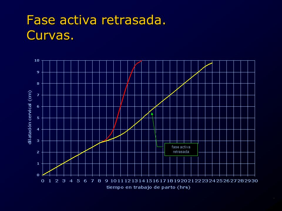 fase activa retrasada fase activa retrasada Fase activa retrasada. Curvas..