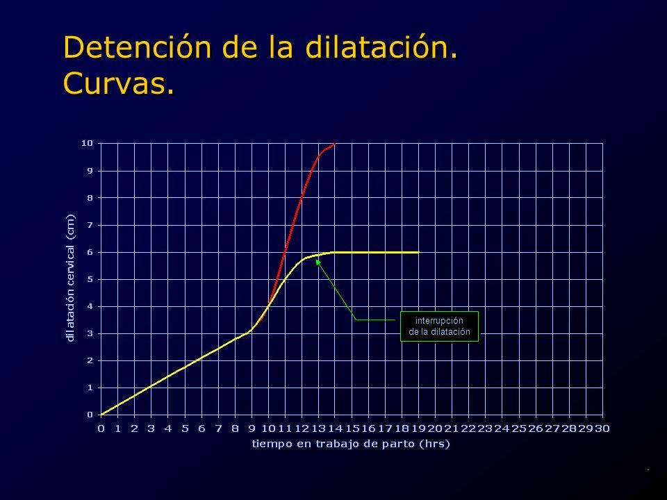 interrupción de la dilatación interrupción de la dilatación Detención de la dilatación. Curvas..