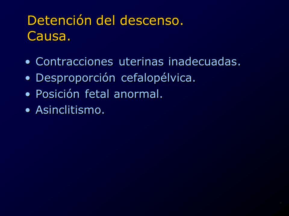 Detención del descenso. Causa. Contracciones uterinas inadecuadas. Desproporción cefalopélvica. Posición fetal anormal. Asinclitismo. Contracciones ut