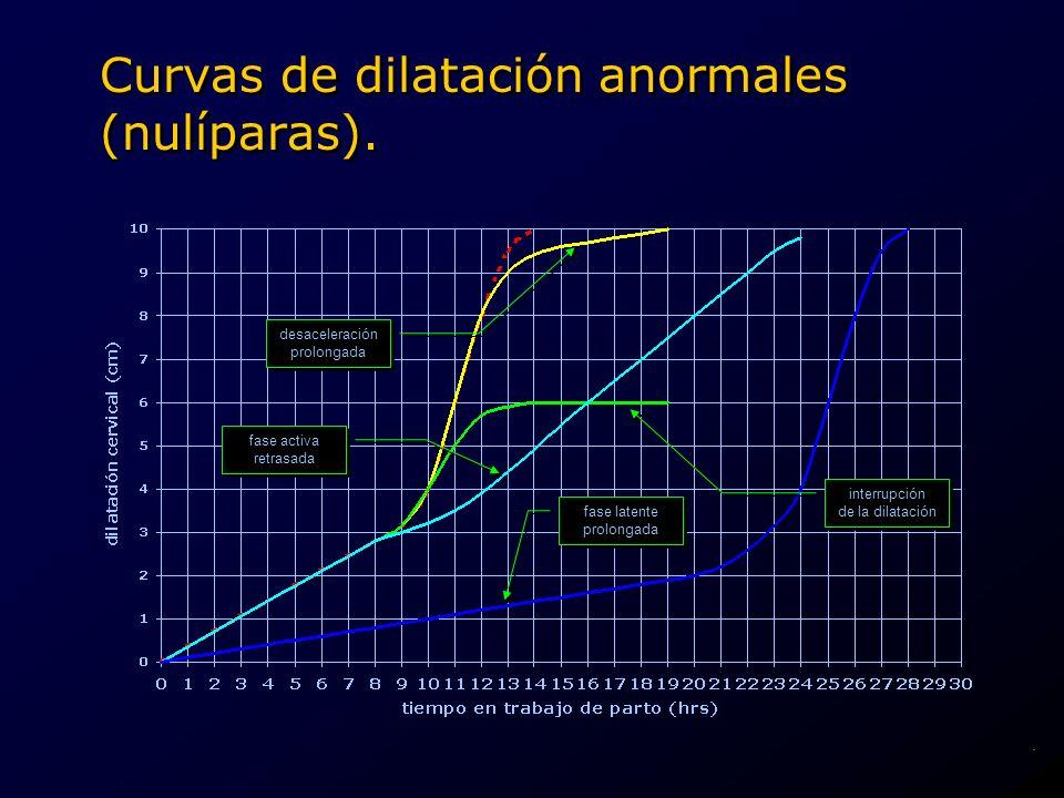 Curvas de dilatación anormales (nulíparas). fase activa retrasada fase activa retrasada fase latente prolongada fase latente prolongada interrupción d
