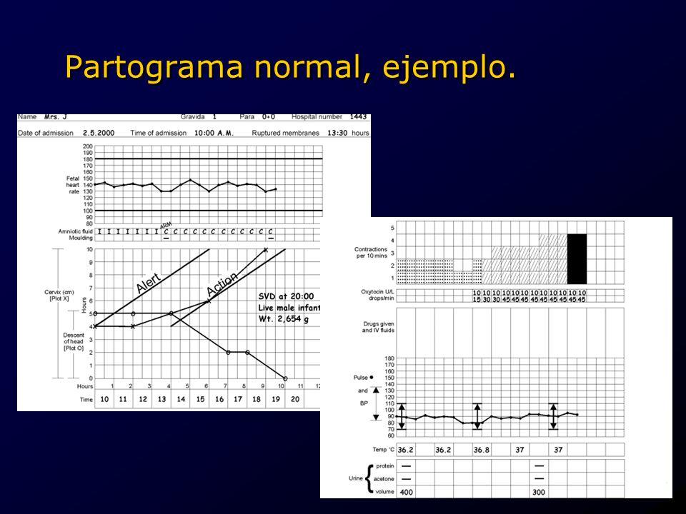 Partograma normal, ejemplo..