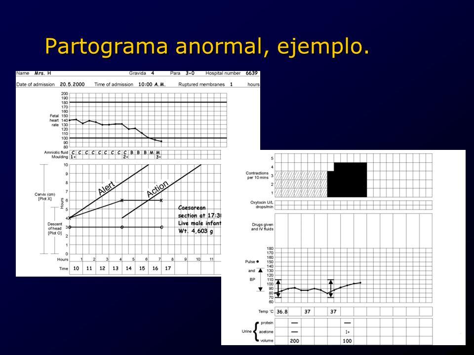 Partograma anormal, ejemplo..