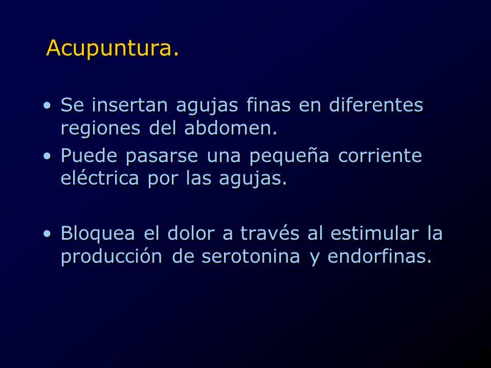 Acupuntura. Se insertan agujas finas en diferentes regiones del abdomen. Puede pasarse una pequeña corriente eléctrica por las agujas. Bloquea el dolo