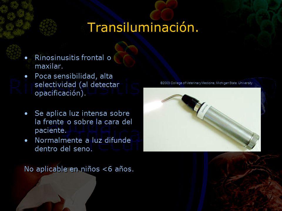 Transiluminación. Rinosinusitis frontal o maxilar. Poca sensibilidad, alta selectividad (al detectar opacificación). Se aplica luz intensa sobre la fr