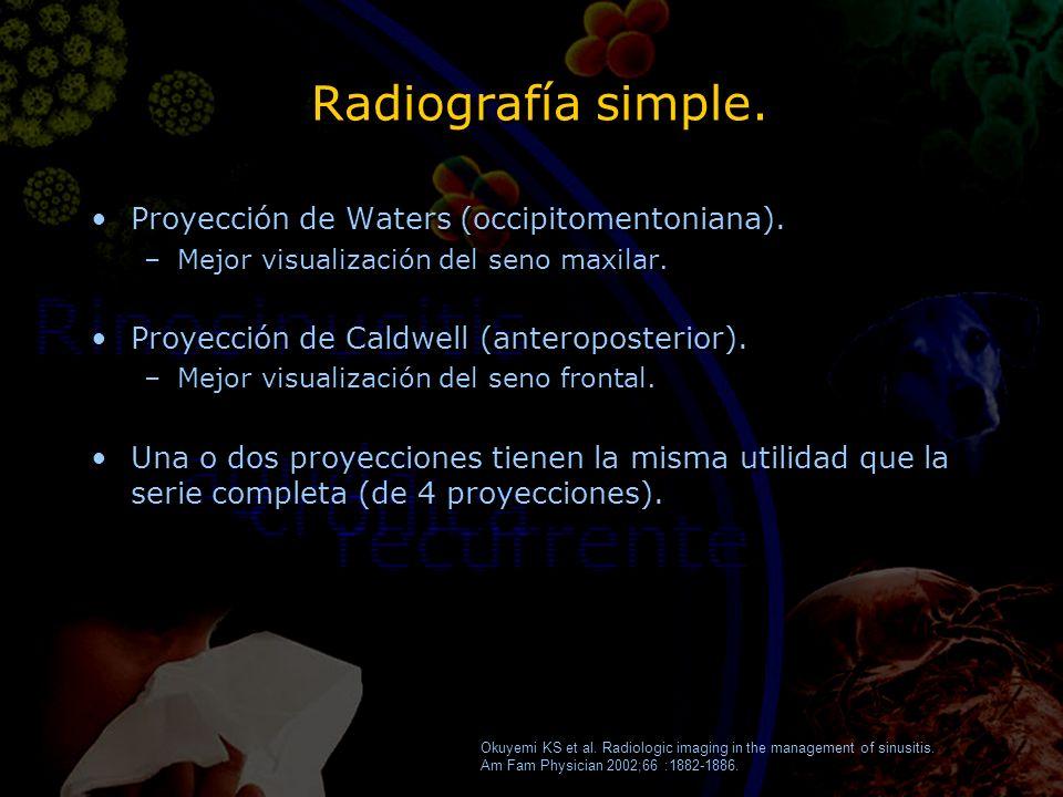 Radiografía simple. Proyección de Waters (occipitomentoniana). –Mejor visualización del seno maxilar. Proyección de Caldwell (anteroposterior). –Mejor