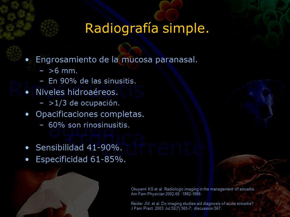 Radiografía simple. Engrosamiento de la mucosa paranasal. –>6 mm. –En 90% de las sinusitis. Niveles hidroaéreos. –>1/3 de ocupación. Opacificaciones c
