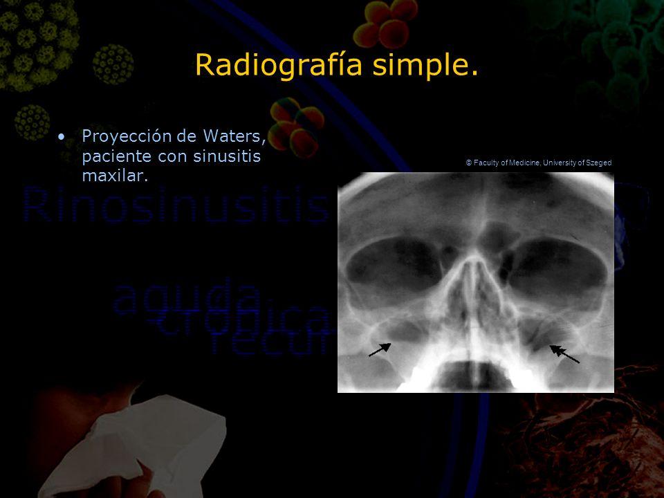 Radiografía simple. Proyección de Waters, paciente con sinusitis maxilar. © Faculty of Medicine, University of Szeged