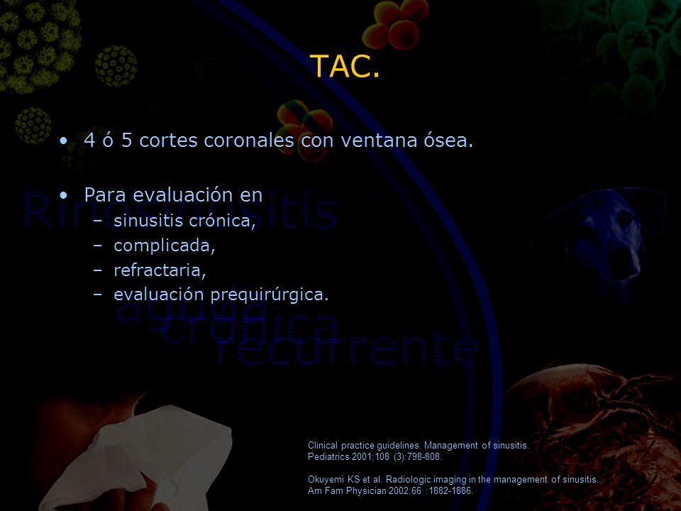 TAC. 4 ó 5 cortes coronales con ventana ósea. Para evaluación en –sinusitis crónica, –complicada, –refractaria, –evaluación prequirúrgica. 4 ó 5 corte